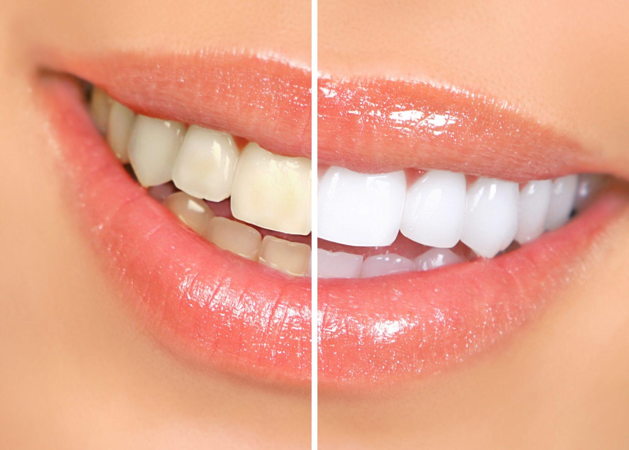 Que NO hacer si quieres aclarar tus dientes